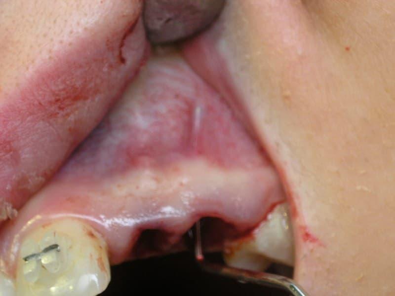 Мал. 6. Показане місце видаленого молочного зуба з практично розсмоктаним коренем, який, до речі, ще й досить добре стояв.